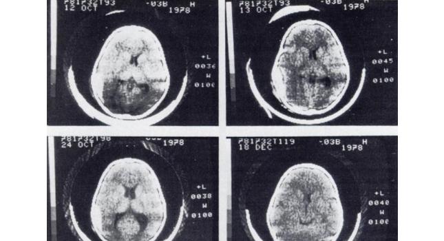Brain Scan 1978